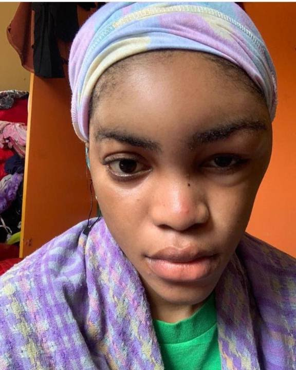 Camille's brother shared the photos of her badly bruised face on social media [KemiFilani]